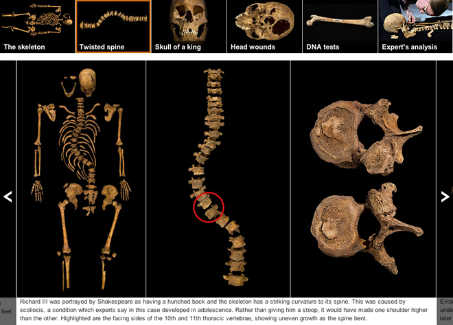 The spine of Richard III shows scoliosis